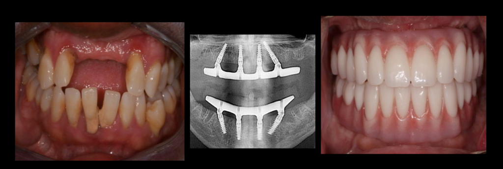 Full Mouth Implant Reconstruction Diagram | Stone Ridge Dental